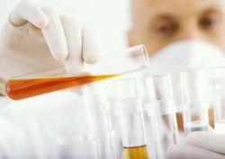 proteine in urina