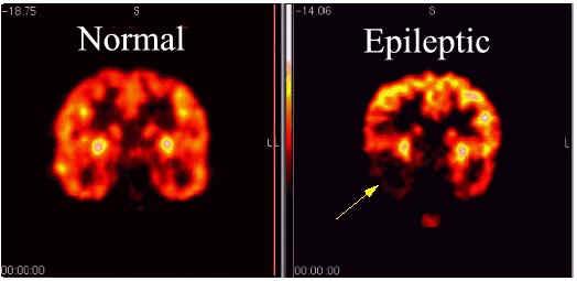 RMN comparativ creier normal epileptic