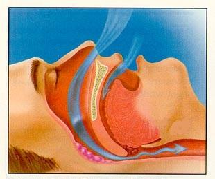 Sforaitul este un simptom al apneei