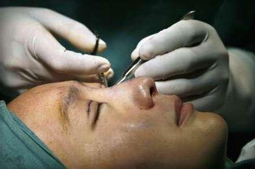 operatie_chirurgicala