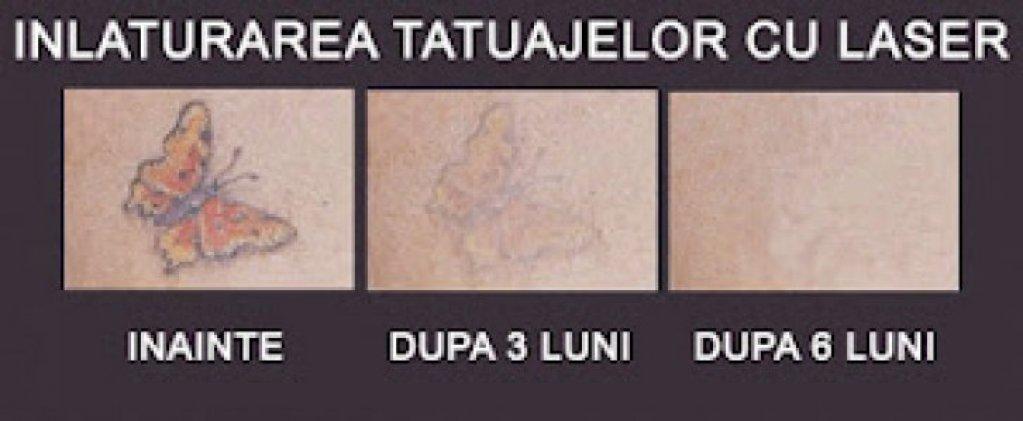 Inlaturarea tatuajelor cu laser in Timisoara - Giroc