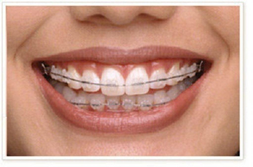 Smile Factory - Invisalign