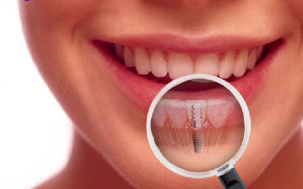 Implanturi dentare ieftine sau scumpe?