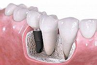 Iata ce presupune aditia osoasa din cadrul tratamentelor cu implant dentar!