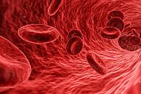 Tratament de ultimă generație pentru ateroscleroza