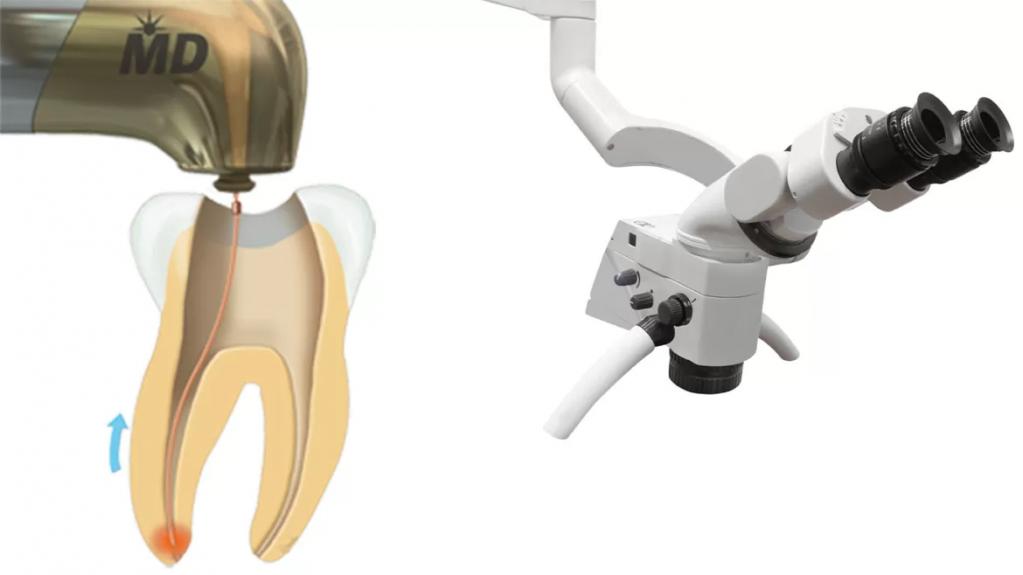 Tratamentul de canal asistat laser în clinica stomatologică Life Dental Spa
