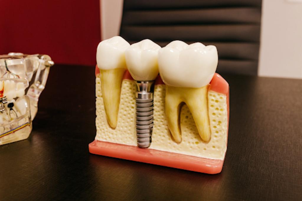 Avantajele și dezavantajele unui implant dentar/Ce trebuie sa știi despre implantul dentar