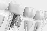 Ce este un implant dentar?