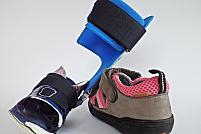 Cum alegi orteza și cum îți protejezi piciorul în timpul purtării