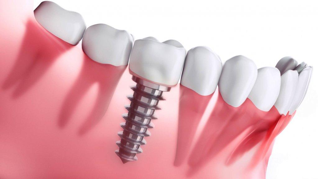Implantul dentar: ce presupune  si cand este recomandat?
